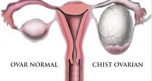 simptome chisturi ovariane, cauze chisturi ovariane